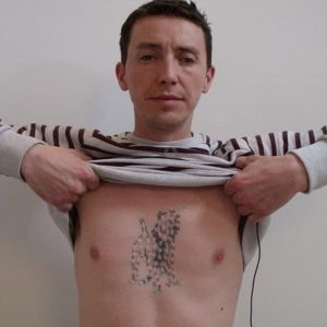 Side Effects of Rejuvi Tattoo Removal