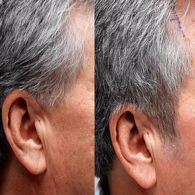 Sideburn Hair Transplant in Dubai & Abu Dhabi