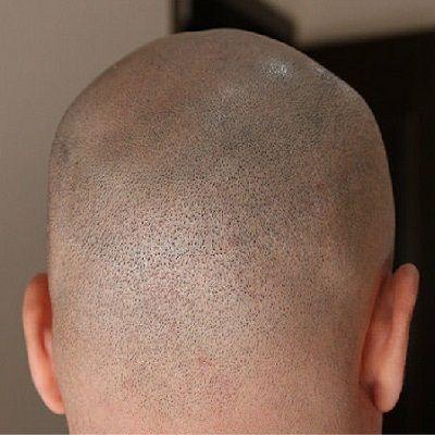 scarless hair transplant in Dubai & Abu Dhabi