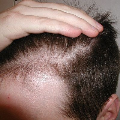 side effects of non surgical hair replacement Dubai & Abu Dhabi