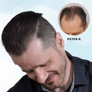 How to Get Satisfied with Results of Hair Transplant?