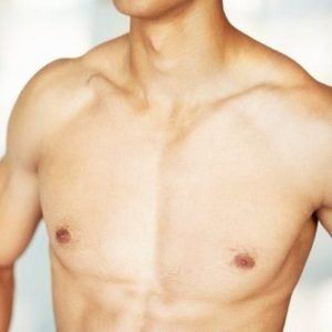 Treatment & Causes of Gynecomastia Male Breast Surgery