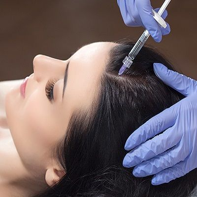 Treatment of Alopecia Areata by Prp Therapy
