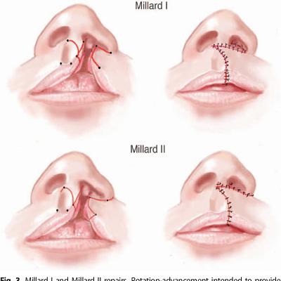 Cleft Lip Surgery in Dubai & Abu Dhabi