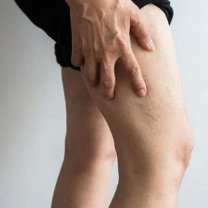 Important Facts About Varicose Veins You Should Know