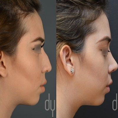 Nose Surgery With Hollywood Surgeon in Dubai