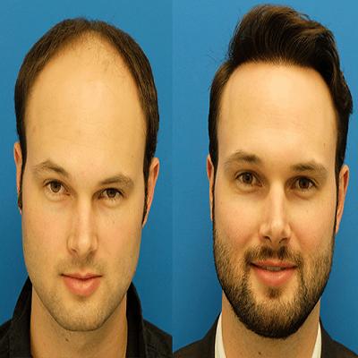 advancement in hair transplantation