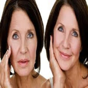 Benefits of Facelift without Surgery