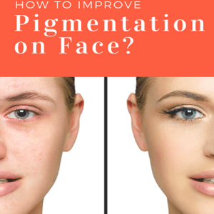 Best Dermatologist in Dubai for Pigmentation