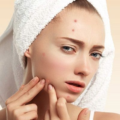 Pimples Treatment in Dubai, Abu Dhabi & Sharjah