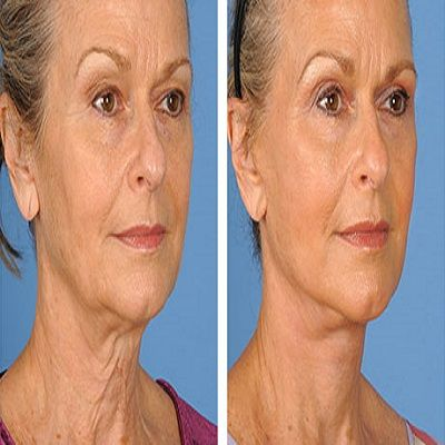 5 Useful Tips to Select a Real or Mini facelift