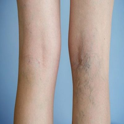 How you can Get Rid of Varicose Veins and Spider Veins