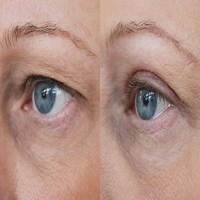 Botox Brow Lift for Hooded Eyes
