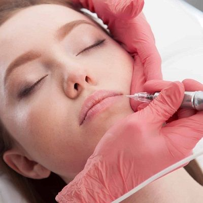 Everything you Need to Know About Plasma Pen Treatment