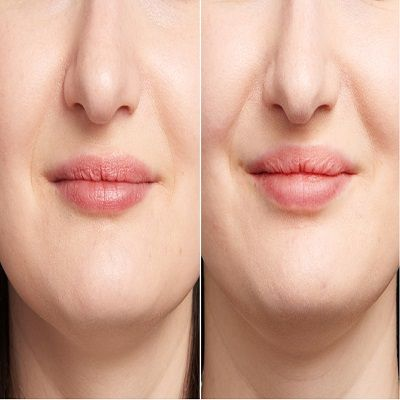 Why Choose Lip Fillers