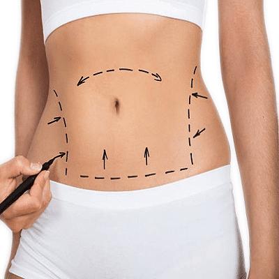Mini Abdominoplasty in Dubai