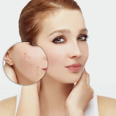 Best Acne Scars Removal Treatment Clinic in Dubai