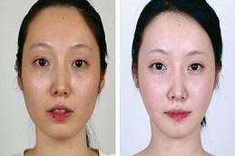 Chin Reduction Surgery in Dubai & Abu Dhabi