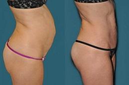 Mini Abdominoplasty Treatment