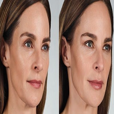 how long to see results from Volbella filler in Dubai