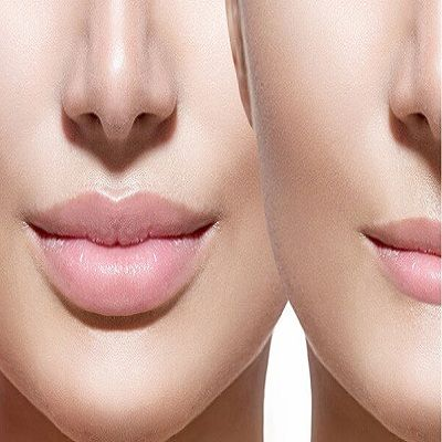 how much volbella filler for lips Cost in dubai