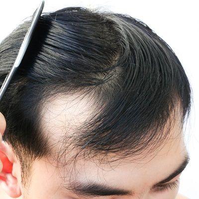 Benefits of laser hair therapy in Dubai & Abu Dhabi Dynamic Clinic