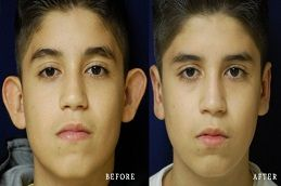 Ear Surgery in Dubai