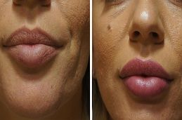 Lip Fillers treatment in dubai & abu dhabi