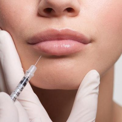 Fillers Injection Cost In Dubai & Abu Dhabi