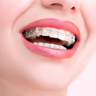 Orthodontists in Dubai