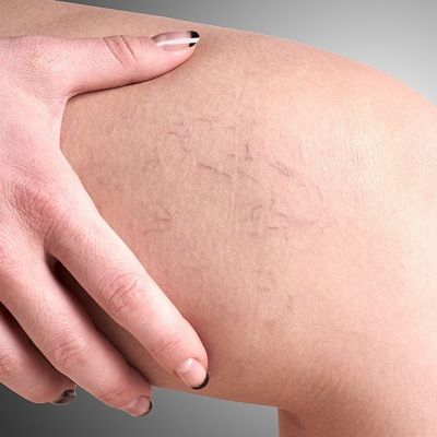 How Much Does Spider Vein Treatment Cost in Dubai Dynamic Clinic