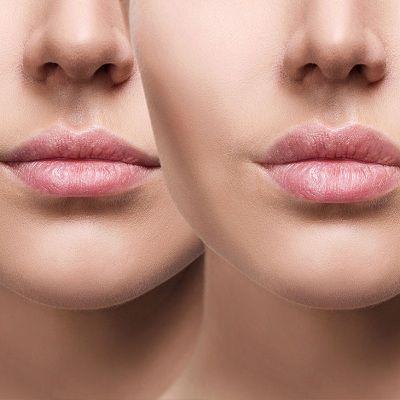 How to Make Lip Fillers Last Longer in Dubai & Abu Dhabi Dynamic Clinic