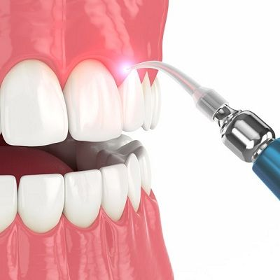 Gingivectomy Surgery in Dubai
