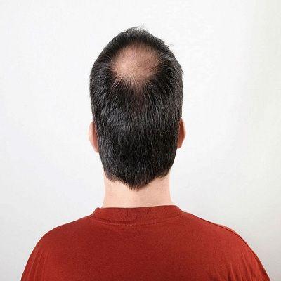 Hair Transplant For Thinning Crown in Dubai, Abu Dhabi & Sharjah