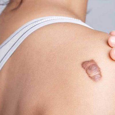 How Do You Treat a Keloid and Hypertrophic Scar in Dubai UAE