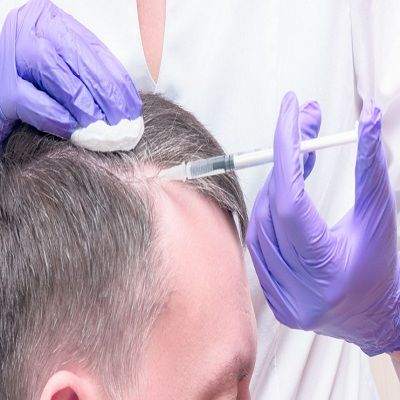 How To Regrow Hair on a Bald Spot Fast in Dubai, Abu Dhabi Cost