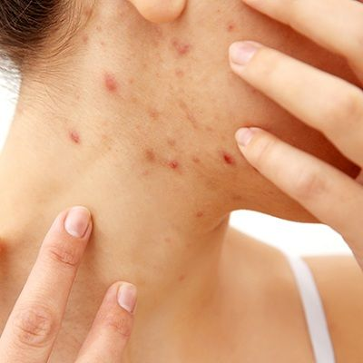 How to Remove Warts on Neck in Dubai & Abu Dhabi Dynamic Clinic