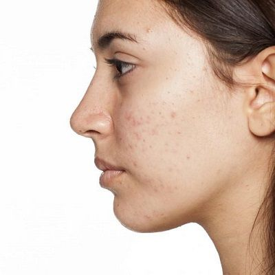Kinds of Acne Scars And How to Treat Each Type in Dubai UAE