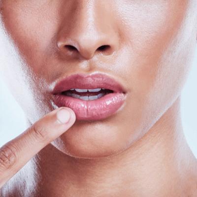 Pink Lips Laser Treatment in Dubai, Abu Dhabi & Sharjah UAE