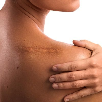 Scar Removal Surgery Cost in Dubai & Abu Dhabi Dynamic Clinic