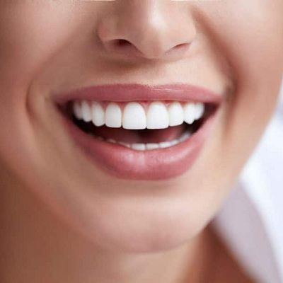 Teeth Whitening Cost in Dubai, Abu Dhabi & Sharjah Dynamic Clinic