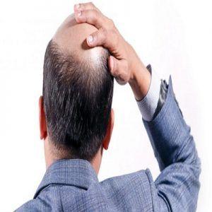 Best Hair Transplant Specialist in Dubai