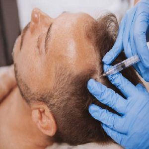 PRP Hair Treatment Sharjah Cost