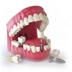 Best Dental Implants Cost in Dubai UAE