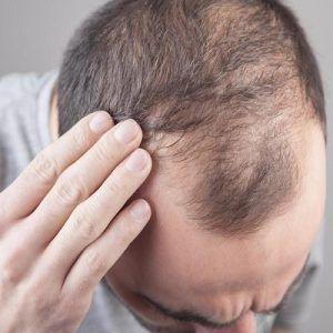 PRP Hair Treatment in Dubai