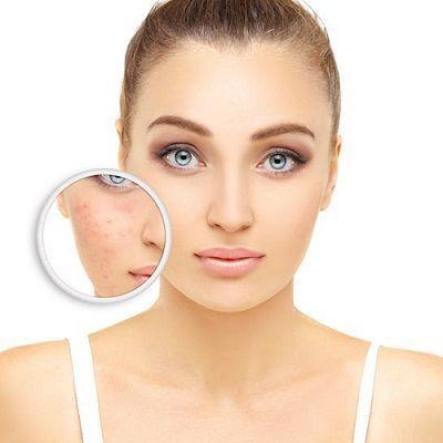 ¿Cuál es la mejor manera de tratar las cicatrices del acné en Dubai?