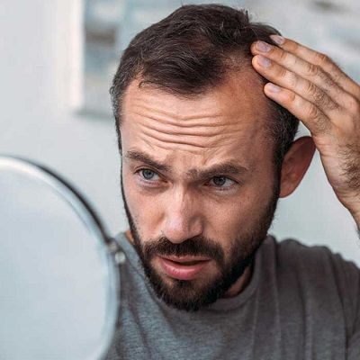 ¿Qué técnica de trasplante de cabello es mejor?