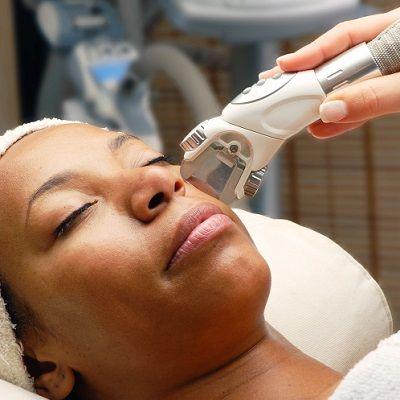 Depilación láser para piel oscura